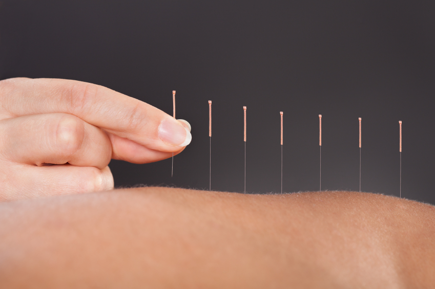 gbah acupuncture